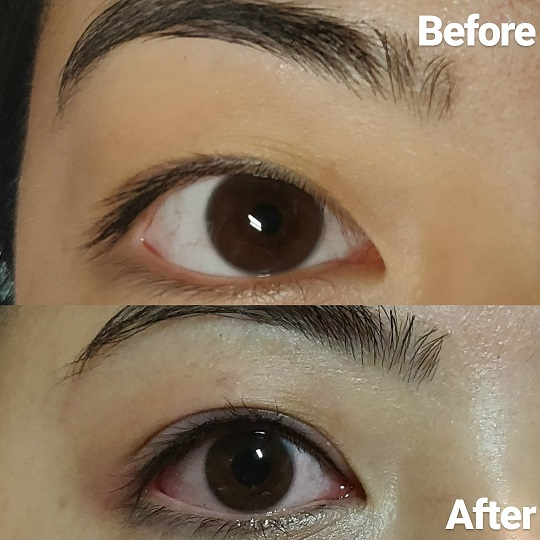 lash enhancement before and after